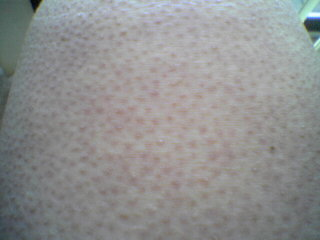 Keratosis pilaris on leg