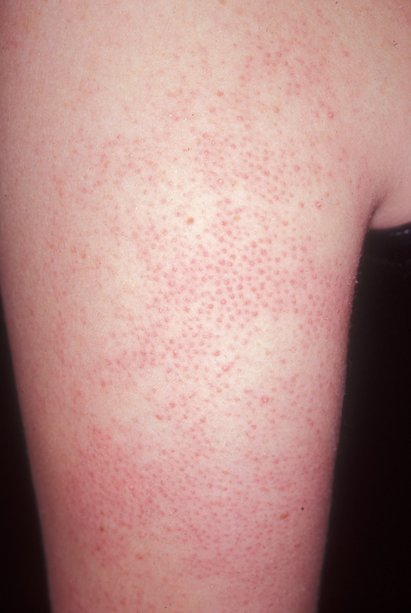 Keratosis pilaris on arm, up close