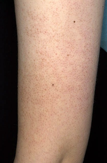 Keratosis Pilaris African American Keratosis pilaris on the arm.
